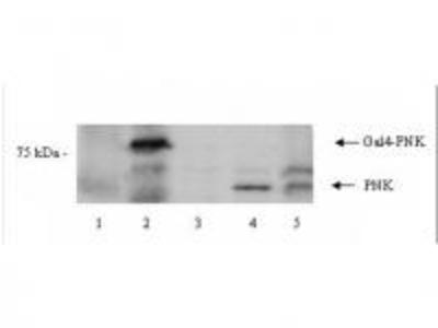 Rabbit polyclonal anti-PNK antibody