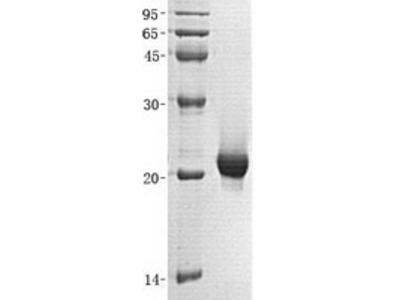 SENP7 (NM_001077203) Human Recombinant Protein