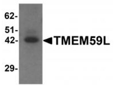 Rabbit Polyclonal TMEM59L Antibody