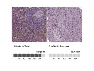 Anti-S100A4 Antibody