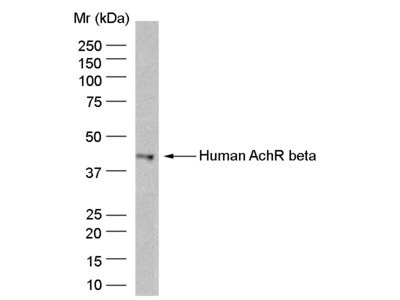 MOUSE ANTI HUMAN ACETYLCHOLINE RECEPTOR BETA