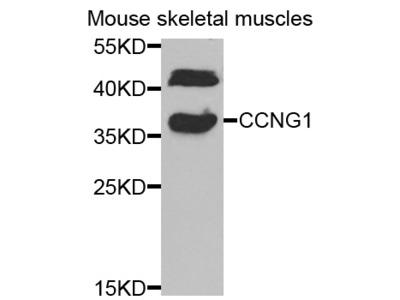 Anti-CCNG1 antibody