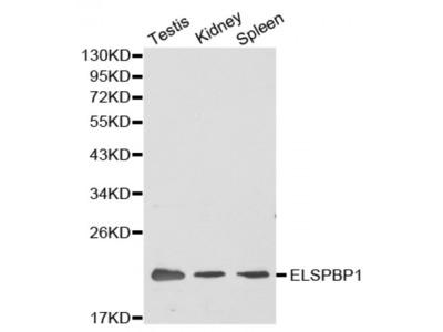 Anti-ELSPBP1 antibody