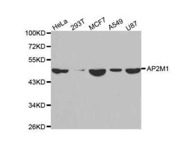 Anti-AP2M1 antibody