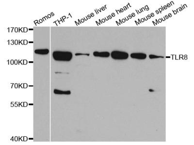 Anti-TLR8 antibody