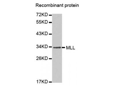 Anti-MLL antibody