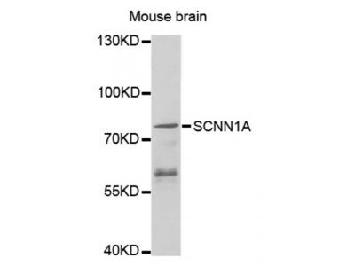 Anti-SCNN1A antibody