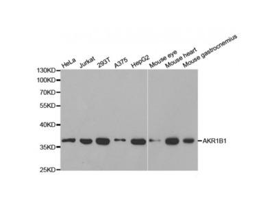 Anti-AKR1B1 antibody