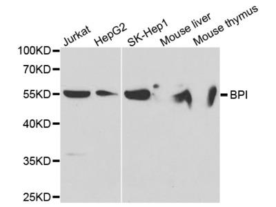 Anti-BPI antibody