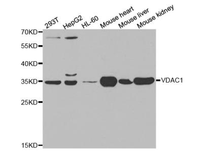 Anti-VDAC1 antibody