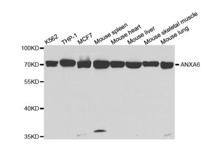 Anti-ANXA6 antibody