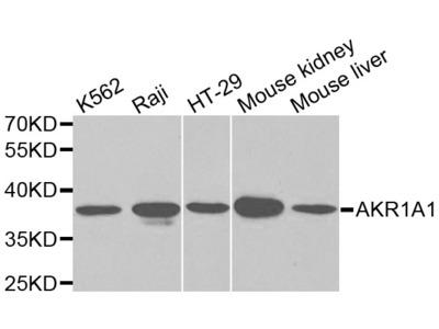 Anti-AKR1A1 antibody