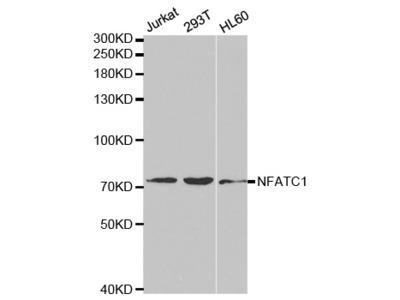 Anti-NFATC1 antibody