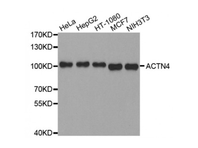 Anti-ACTN4 antibody