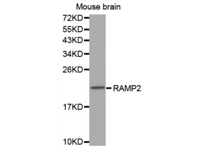 Anti-RAMP2 antibody