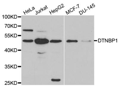 Anti-DTNBP1 antibody