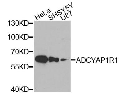 Anti-ADCYAP1R1 antibody