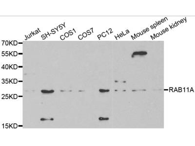 Anti-RAB11A antibody
