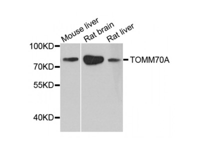 Anti-TOM70 antibody