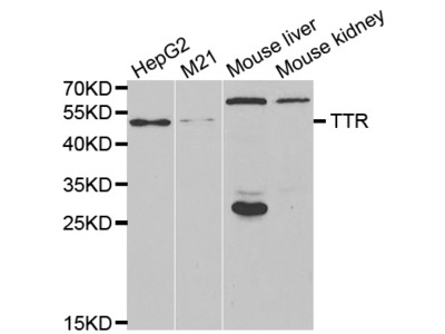 Anti-TTR antibody