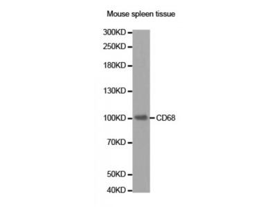 Anti-CD68 antibody