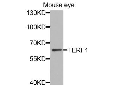 Anti-TERF1 antibody