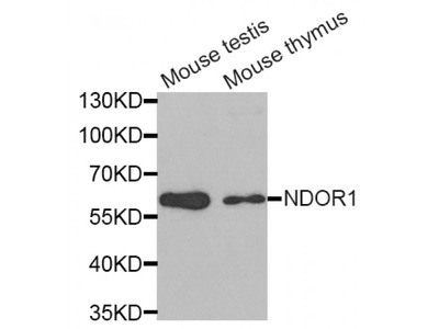 Anti-NDOR1 antibody