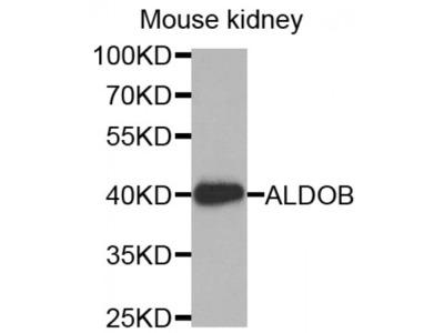 Anti-ALDOB antibody