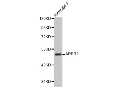 Anti-ARRB2 antibody