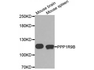 Anti-PPP1R9B antibody