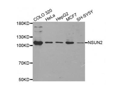 Anti-NSUN2 antibody