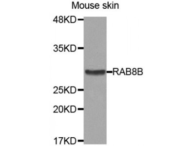 Anti-RAB8B antibody