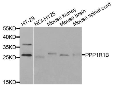 Anti-PPP1R1B antibody