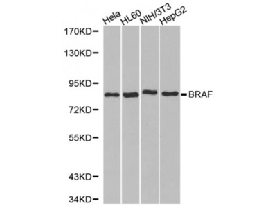 Anti-B-Raf antibody