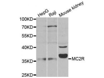 Anti-MC2R antibody
