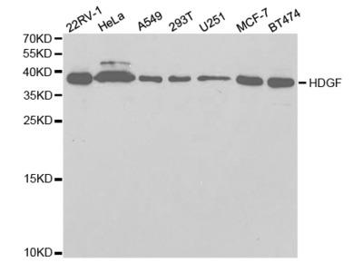 Anti-HDGF antibody
