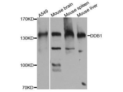 Anti-DDB1 antibody