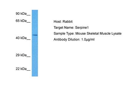 SERPINE1 antibody - N-terminal region (ARP47469_P050)