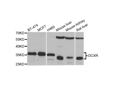 Anti-DCXR antibody