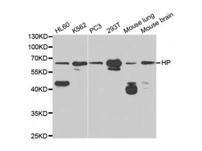 Anti-HP antibody