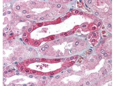 Carbonic Anhydrase II / CA2 Antibody