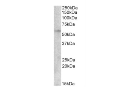 Goat Polyclonal EGR2 Antibody