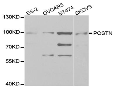 Anti-POSTN antibody