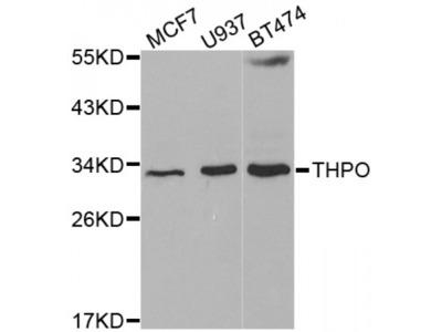 Anti-THPO antibody