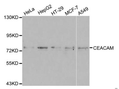 Anti-CEACAM5 antibody