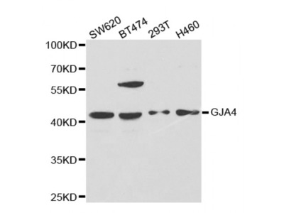 Anti-GJA4 antibody
