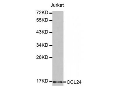 Anti-CCL24 antibody