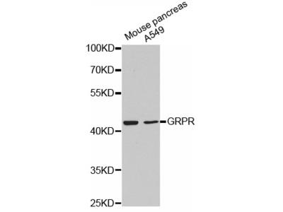 Anti-GRPR antibody