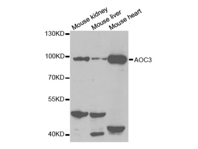 Anti-AOC3 antibody