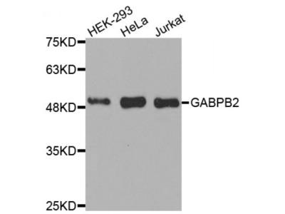 Anti-GABPB2 antibody